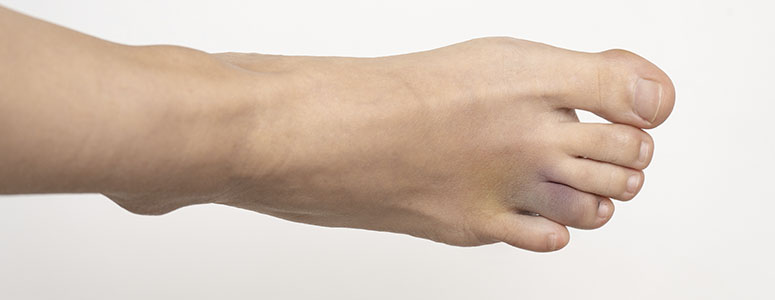 Fratura do dedo do pé