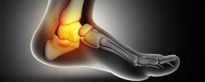 Prótese no tornozelo: Entenda como funciona