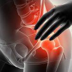 Sacroileite: Como tratar a temerosa inflamação que limita os corredores