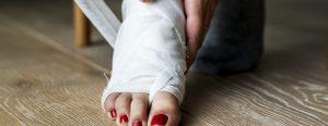 Coalizão tarsal - Entenda a fusão dos ossos do pé