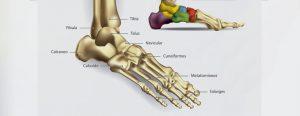 Fissura no 5° metatarso do pé direito: a lesão de Neymar