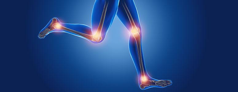 Osteocondrite: O que é essa dor que ocorre nas articulações?